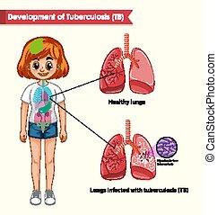 ábra orvosi, tudományos, tuberkulózis