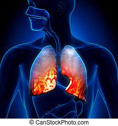-, pneumonia, gyújtó hatású, cond, tüdő