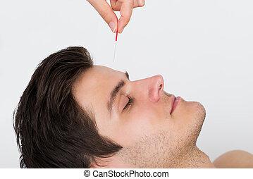 akupunktúra, felfogó, bánásmód, ember