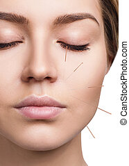 akupunktúra, treatment., nő, elszenvedő