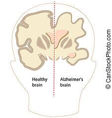 alzheimer's, agyonüt, betegség, eps8