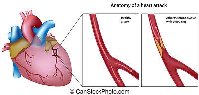anatómia, szívroham