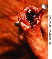 artery., elzárt