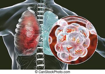 bacterial, fogalom, orvosi, pneumonia