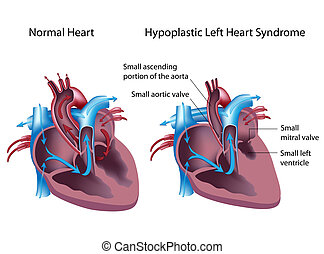 bal, hypoplastic, szív, szindróma