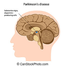 betegség, parkinson's, eps8