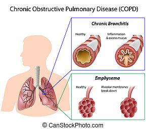 betegség, tüdő, eps8
