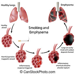 dohányzó, tüdőtágulás, eps8