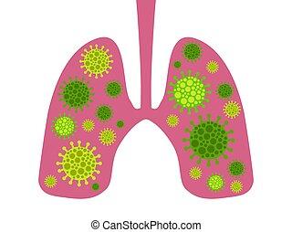 fertőzés, lungs., vektor, középső, légzési, coronavirus, ábra, kelet, syndrome., 2019-ncov