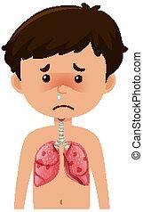 fiú, beteg, pneumonia, coronavirus