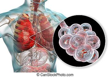 fogalom, pneumonia, orvosi, bacterial