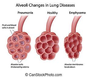 fogmeder, tüdő, betegségek