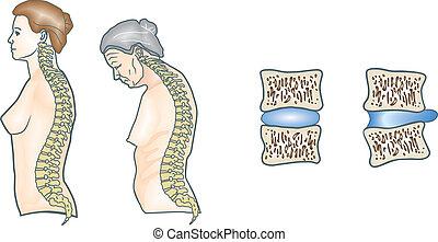 gerinc, emberi
