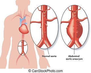 hasi, körülírt ütőértágulat, aorta-