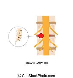 herniated, bizonyítás, disc., emberi, ábra, ágyéktáji