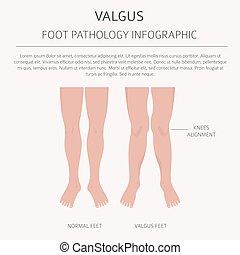 infographic., disszidál, deformáció, desease, valgus, lábfej, varus, orvosi