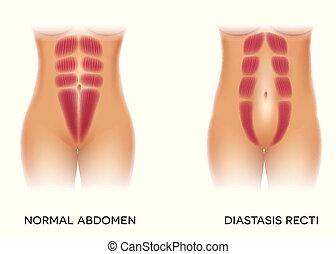 is, elválasztás, ismert, diastasis, recti, hasi