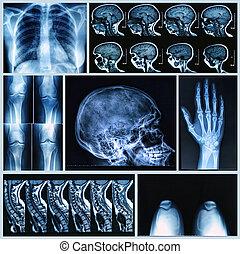 játékkockák, röntgenográfia, emberi