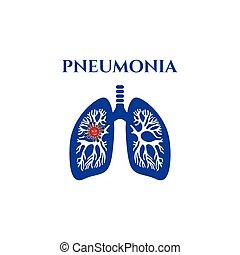 jel, pneumonia