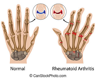 kéz, izületi gyulladás, reumaszerű, eps8