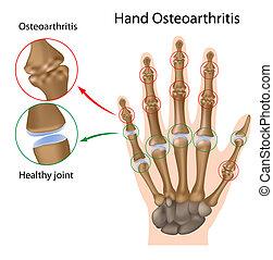 kéz, osteoarthritis, eps8