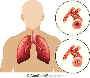 krónikus, tüdő-, betegség, emberi, székrekedést okozó szer