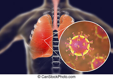 légzési, szindróma, mers, vírus, coronavirus, meadle-east