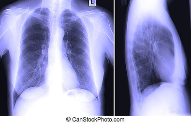 mellkas-röntgen