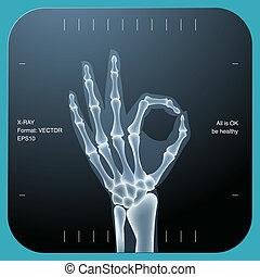 mindkét, jóváhagy, jelkép, -, kéz, emberi, röntgen
