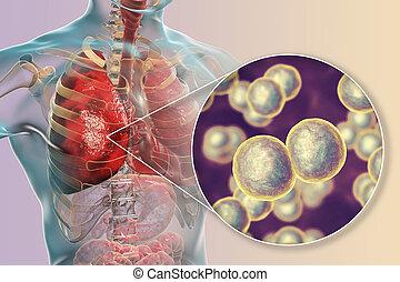 moraxella, okozott, fertőzés, catarrhalis, tüdő, baktérium