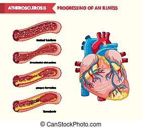 orvosi, atherosclerosis, tudományos, ábra