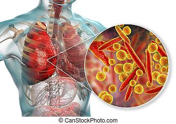 pneumoniae, okozott, fertőzés, tüdő, mycoplasma, baktérium