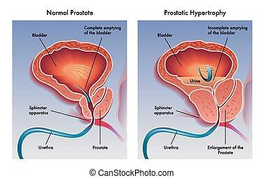 Prostatitis és több ezer ezer