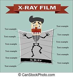 röntgen, film