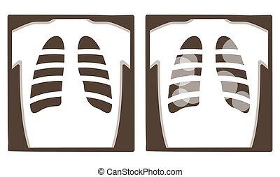röntgen, kilátás, megvizsgál, tart, tüdő, film