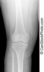 radiographic, kép, térd, x-ray., érzékelő, osteoarthritis.