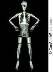 szív, comb, alkar, hát, tüdő, emberi, medence, fegyver akimbo, ), láda, tapogat, boka, :, csípő, fej, (x-ray, láb, test, potroh, kéz, csukló, lábfej, térd, mellkas, váll, nyak, koponya, gerinc, csigolya, áll, könyök, egész, csont