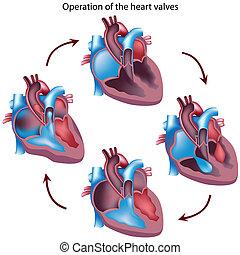szív, műtét, rádiócső