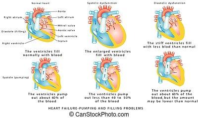 szív meghibásodás