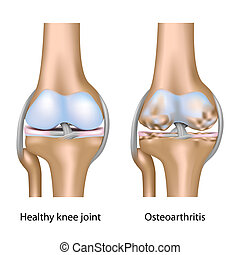 térd, osteoarthritis, eps10, közös