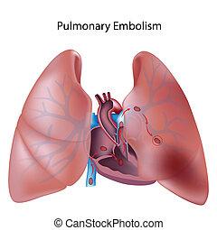 tüdő-, eps10, embólia