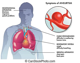 tünetek, körülírt ütőértágulat