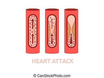 tünetek, szívroham, vektor