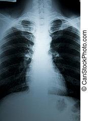 test, röntgen, fürkész