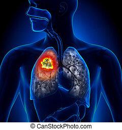 tumor, tüdő, -, részletez, rák