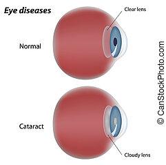 vízesés, szem, betegség, eps8