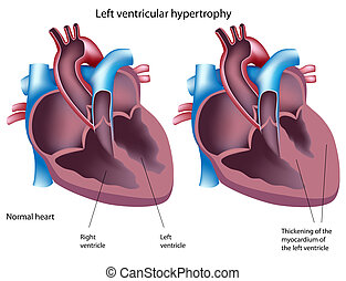 ventricular, betegesen megnagyobbodik, eps8, bal