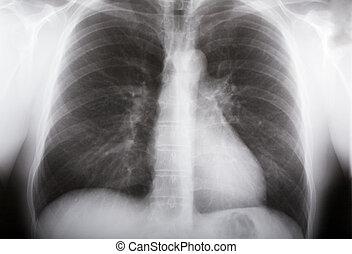 xray, tüdő